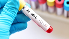 Up to 15.000 Chadian people were checked as part of the Egyptian Initiative to cure one million African from Hepatitis C since the implementation of the initiative last October
